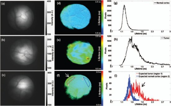 Endoscopic fluorescence intensity and lifetime images of normal tissue and brain tumor